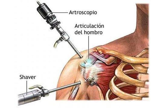 Arthroscopy